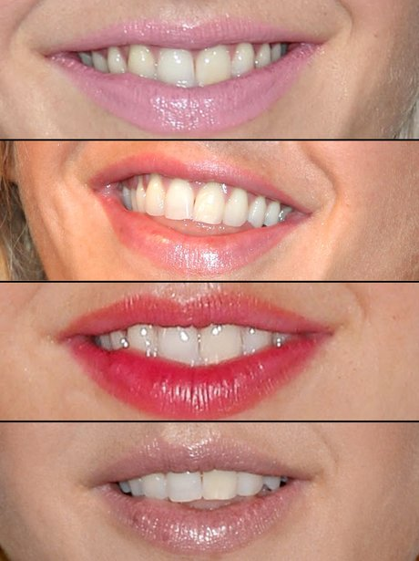 Guess The Celebrity Smile